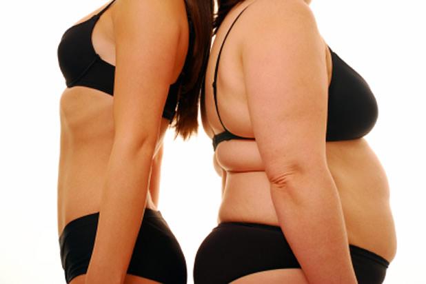 mrsavljenje-gojaznost