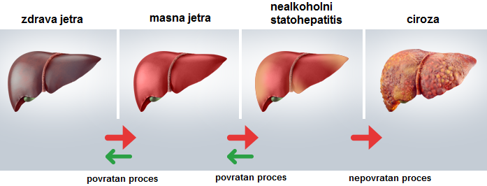Liver Function And Energy Drinks